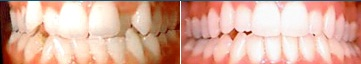 Invisalign Results West Allis WI