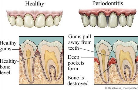 Periodontal Disease West Allis WI