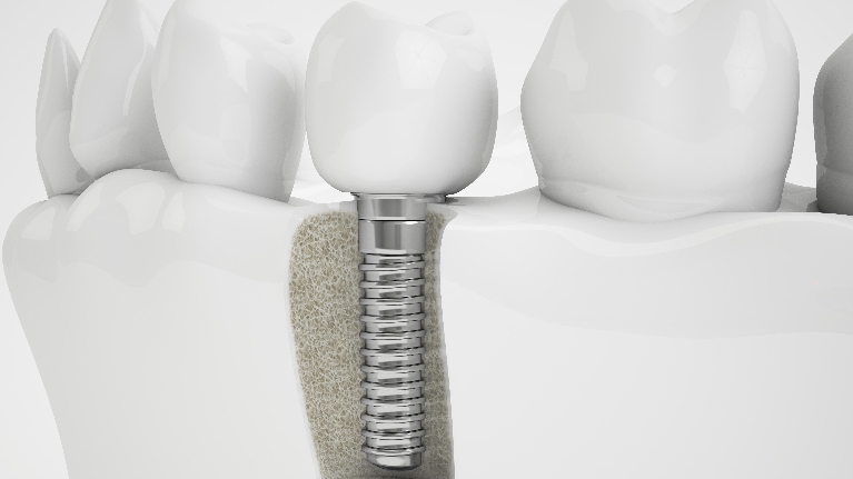 Dental Implants Milwaukee WI