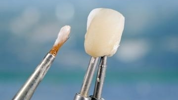Dental Veneer | Dentist Milwaukee WI