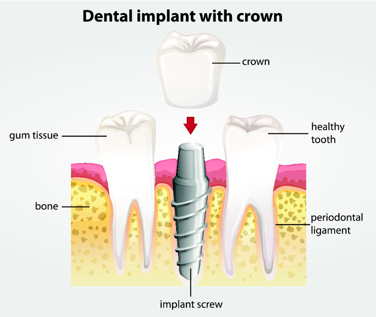 Dental Implant and Crown Diagram