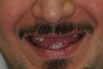 Aesthetic-Partial-Denture-Before-Image