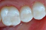 Mercury-Free-Tooth-Colored-Fillings-After-Image