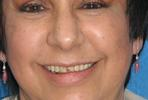 Smile-Makeover-with-Porcelain-Veneers-2-Before-Image