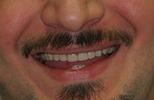 Aesthetic-Partial-Denture-After-Image