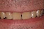 Non-prep-Porcelain-Veneers-Before-Image