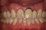 Dental-Crowns-and-Veneers-Before-Image
