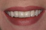 Aesthetic-Porcelain-Bridge-and-Veneers-After-Image