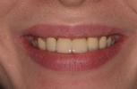 Aesthetic-Porcelain-Bridge-and-Veneers-Before-Image