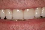 Non-prep-Porcelain-Veneers-After-Image