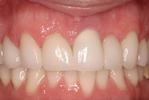 Dental-Crowns-and-Veneers-After-Image
