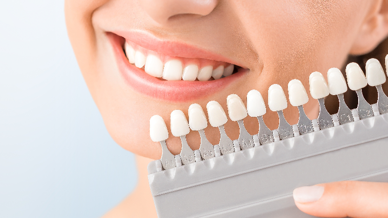 Woman Getting teeth whitened | Dentist Milwaukee WI