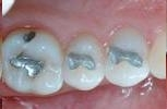 Mercury-Free-Tooth-Colored-Fillings-Before-Image